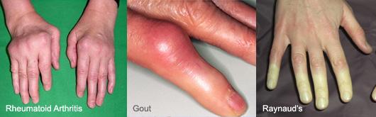 symptoms pic 2